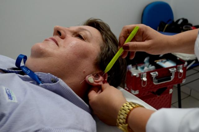 Tratamento com acupuntura é a mais nova  conquista dos trabalhadores em cooperativas