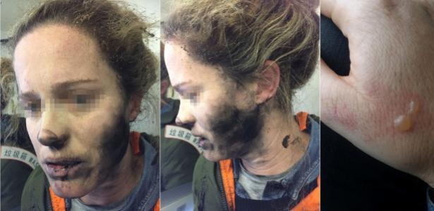 Autoridades advertem para risco de eletrônicos em voos após explosão de fone de passageira australiana