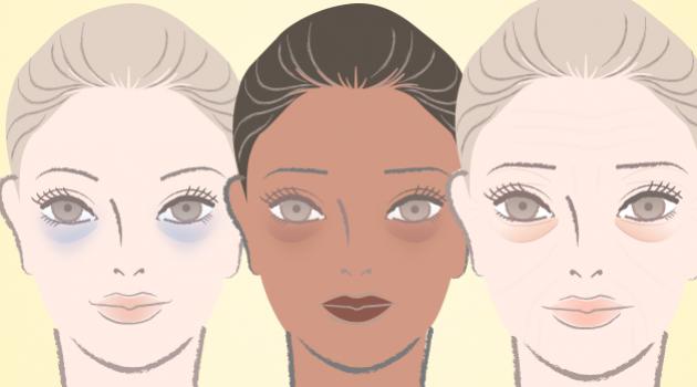 Truque do batom para se livrar das olheiras: vídeo ensina como aplicar direitinho