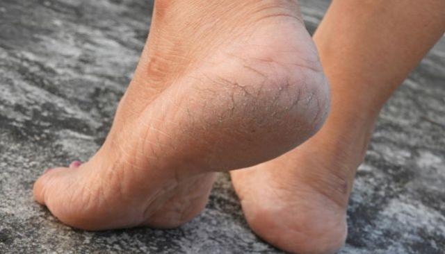 Selecionamos os jeitos mais eficientes para acabar com pés rachados e ressecados