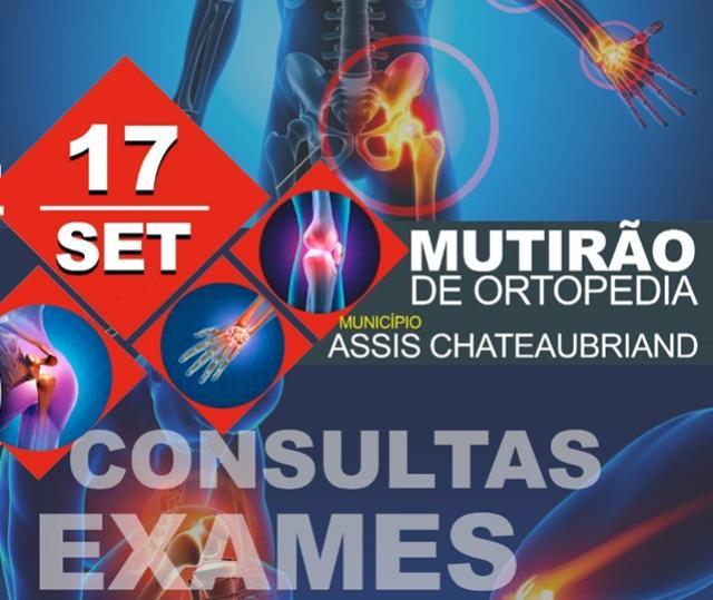 Mutirão de ortopedia será realizado em Assis Chateaubriand