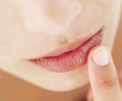 Lábios ressecados: o que fazer para melhorá-los?