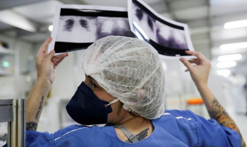 Universidades desenvolvem apoio a diagnóstico de covid-19 com raio-x