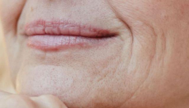 Rugas ao redor da boca: como tirar, o que causa e truque na hora de passar o creme