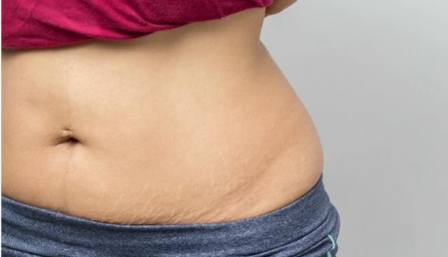 Quem emagreceu e se incomoda com flacidez pode tratar o problema sem cirurgia