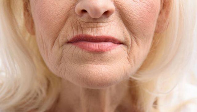 Jeito caseiro de acabar com bigode chinês: esteticista garante que funciona de verdade