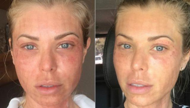 Modelo mostra antes e depois realista de tratamento de beleza: como funciona? Dói?