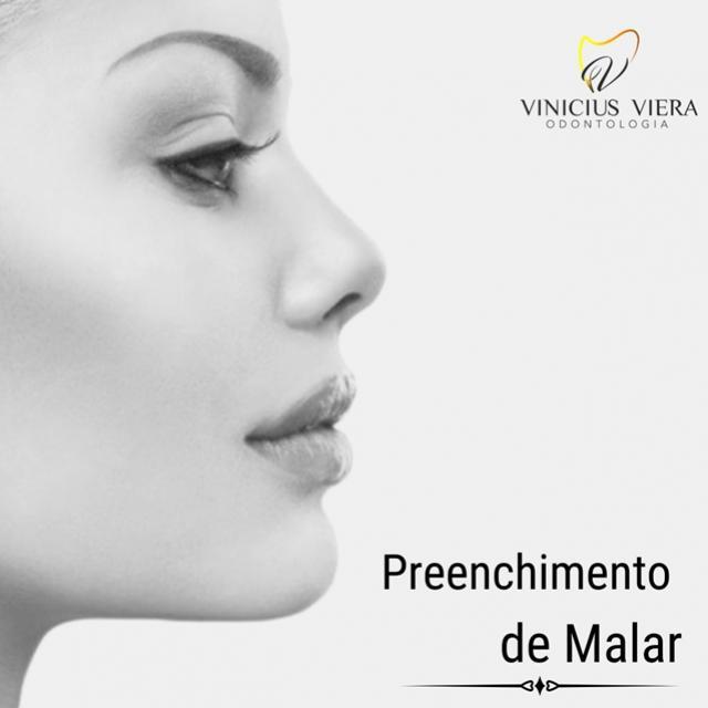 Consultório Vinicius Viera - Agende uma visita e saiba como deixar seu rosto mais harmônico!
