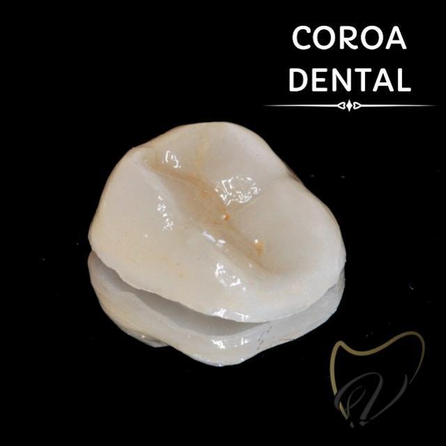 """Consultório Vinicius Viera - Conheça a """"Coroa Dental"""" e seus benefícios!"""