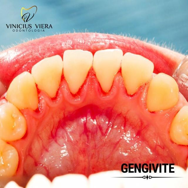 Consultório Vinicius Viera - Agende uma consulta e saiba como deixar sua saúde bucal em dia!