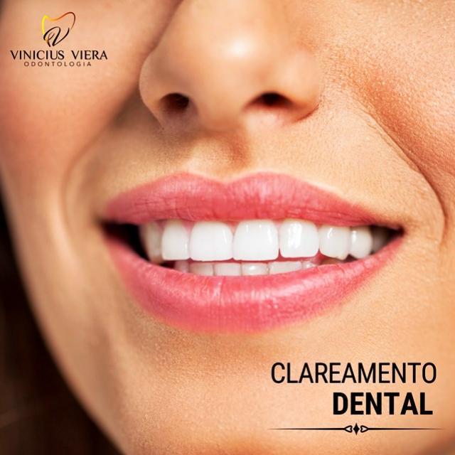Consultório Vinicius Viera - Agende sua consulta e saiba como deixar seu sorriso ainda mais lindo!