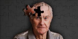Alzheimer precoce: diagnóstico e tratamento