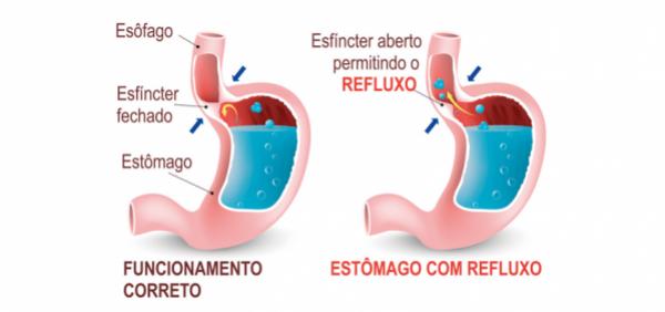 Incontinência de Cárdia - Refluxo Gástrico