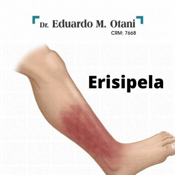 Erisipela - Dr. Eduardo M Otani