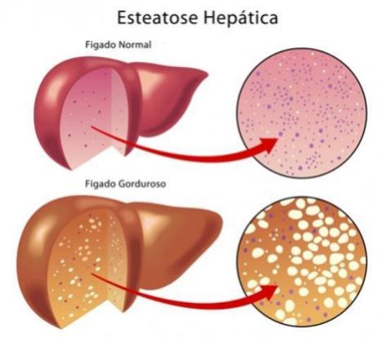 Fígado Gorduroso ( Esteatose Hepática )