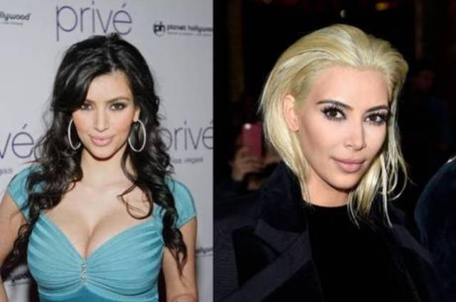 Bichectomia: conheça a cirurgia que afina o rosto que caiu nas graças das famosas